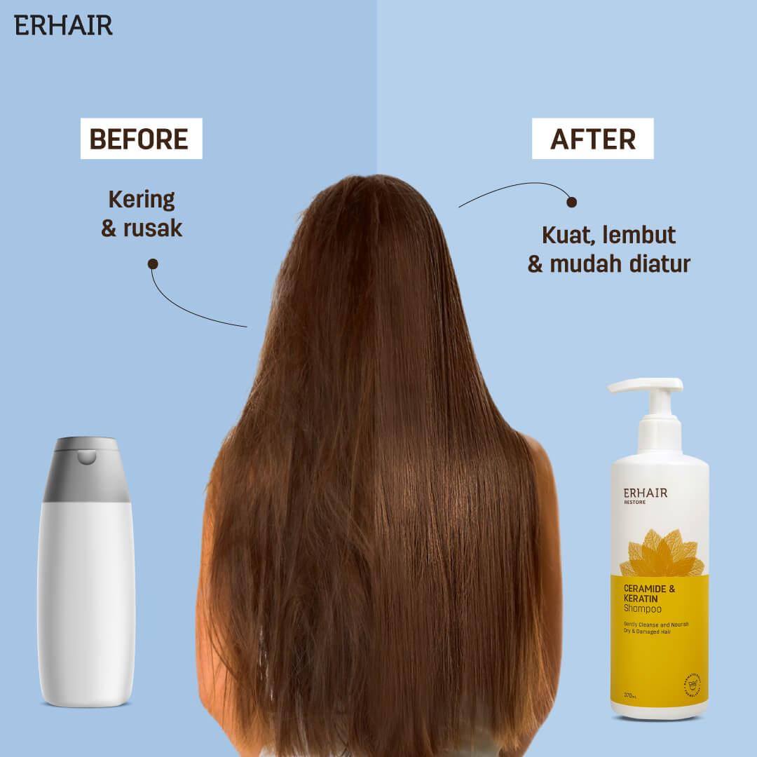 hair grow from erha