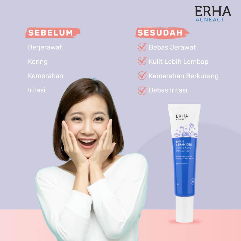 acne gentle moisturizer