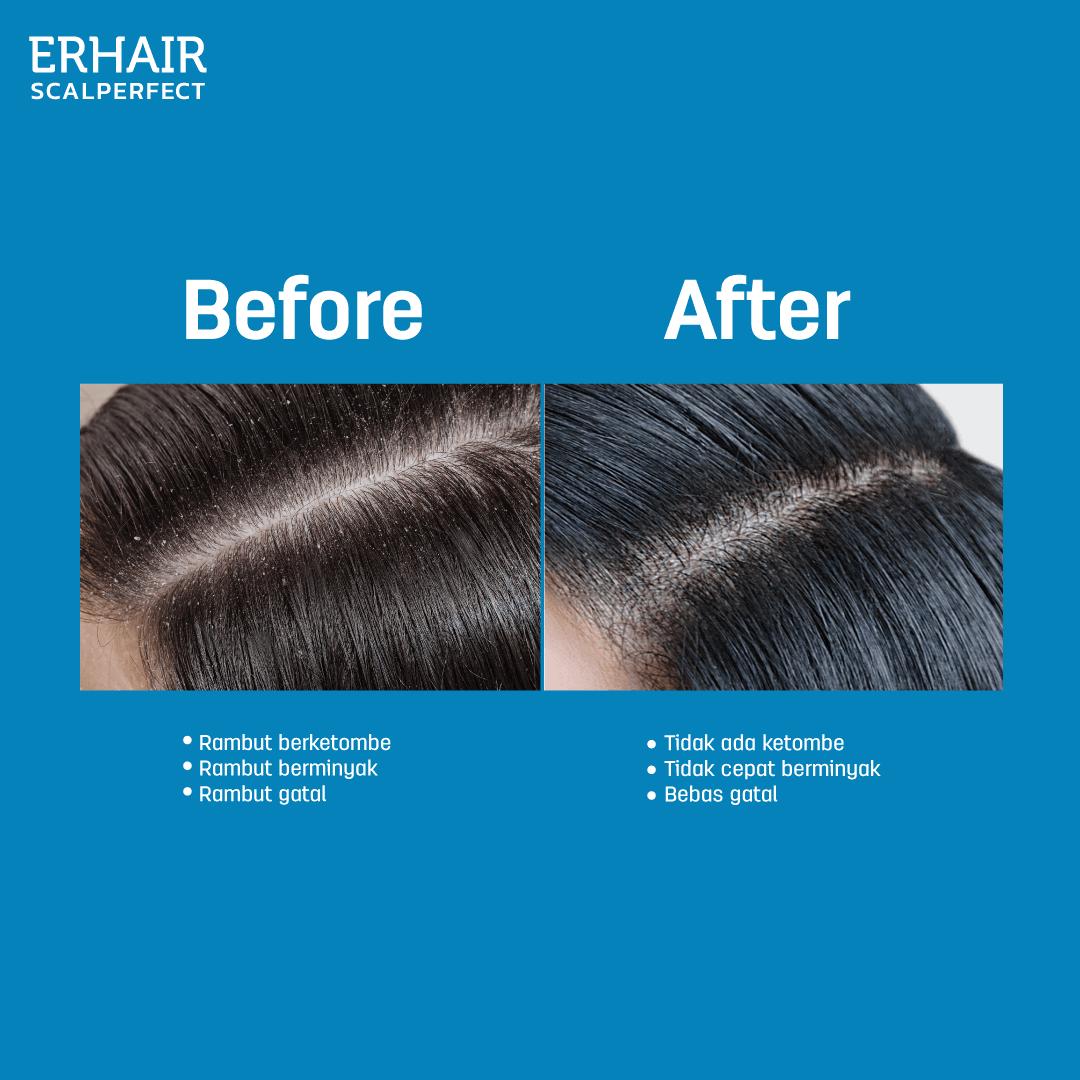 erhair scalperfect scalp